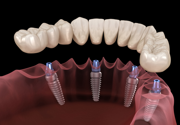 What Are Implant Secured Dentures